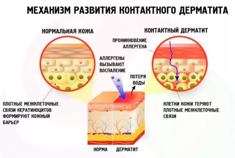 Острое воспаление кожи что это